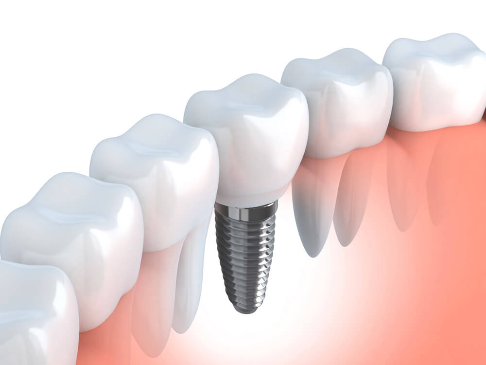 dental-implants Simi Valley